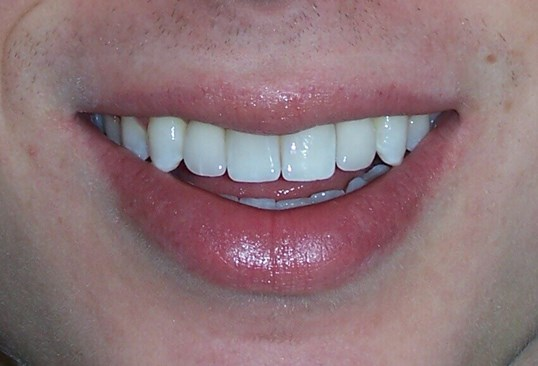 Congenitally Missing Teeth After