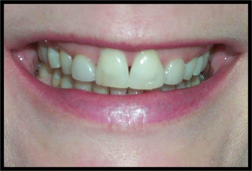 Anterior 360 Veneers Before