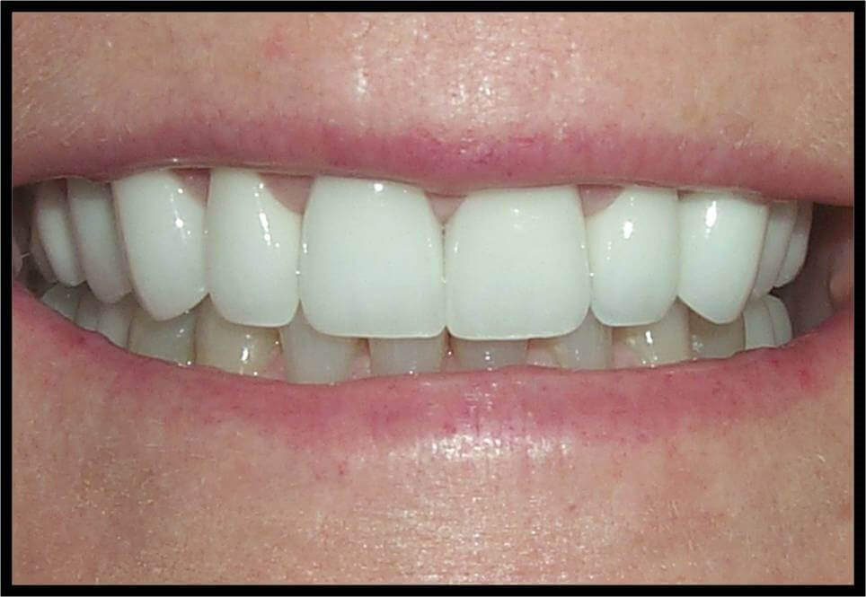 Implants and 360° Veneers After