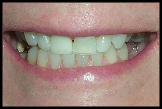 Implants and 360° Veneers Before