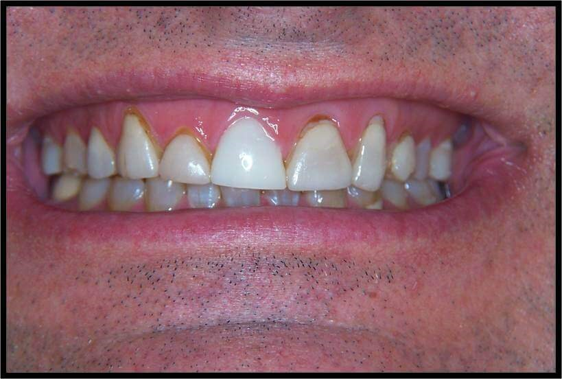 Anterior Crowns Before