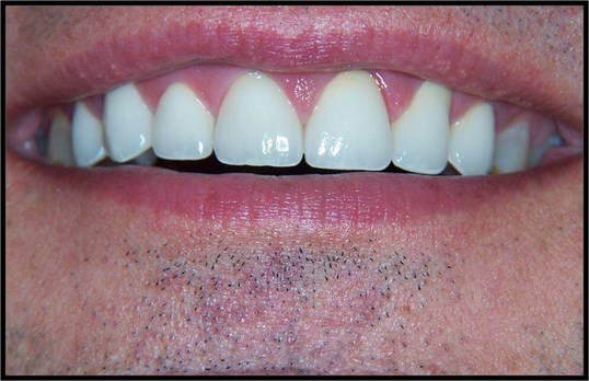 Anterior Crowns After
