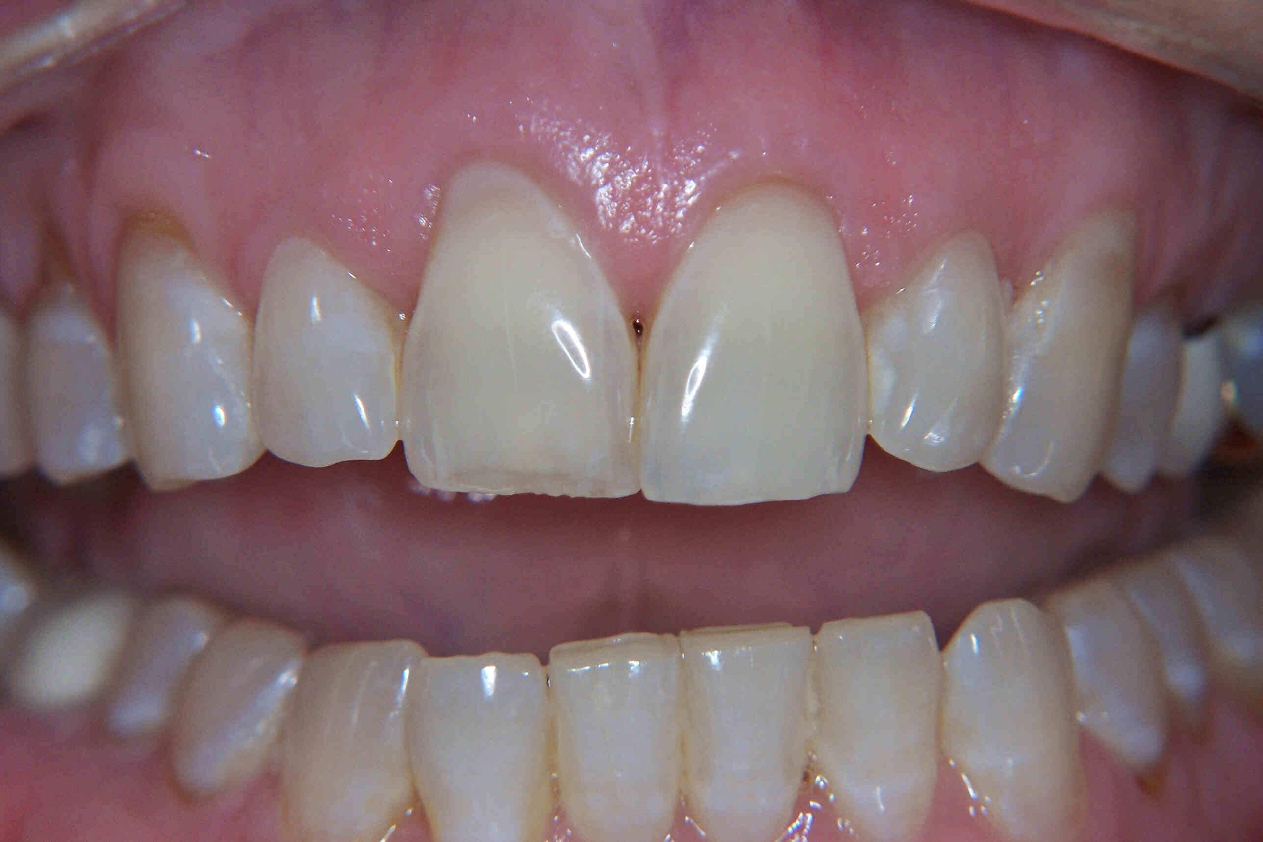 Dental Crowns Before