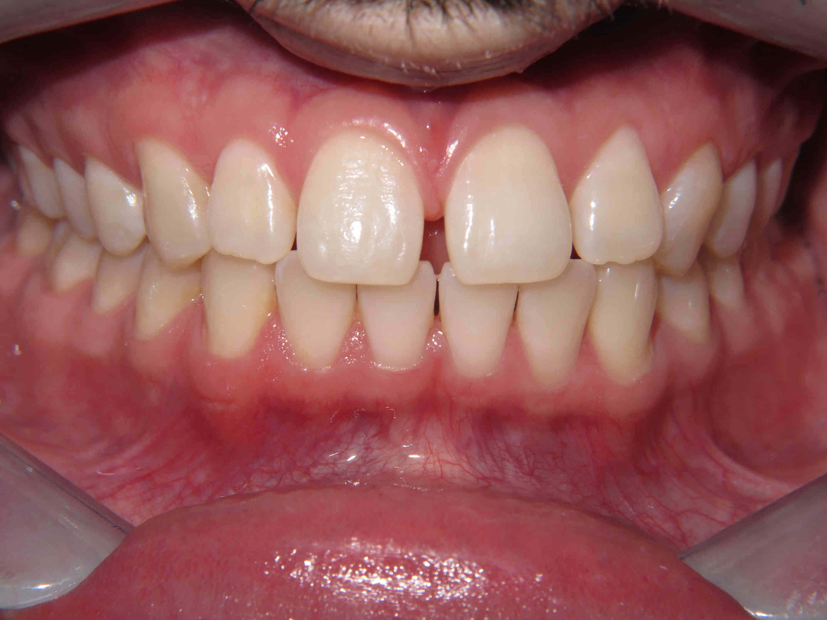 Clear Correct Aligners Before