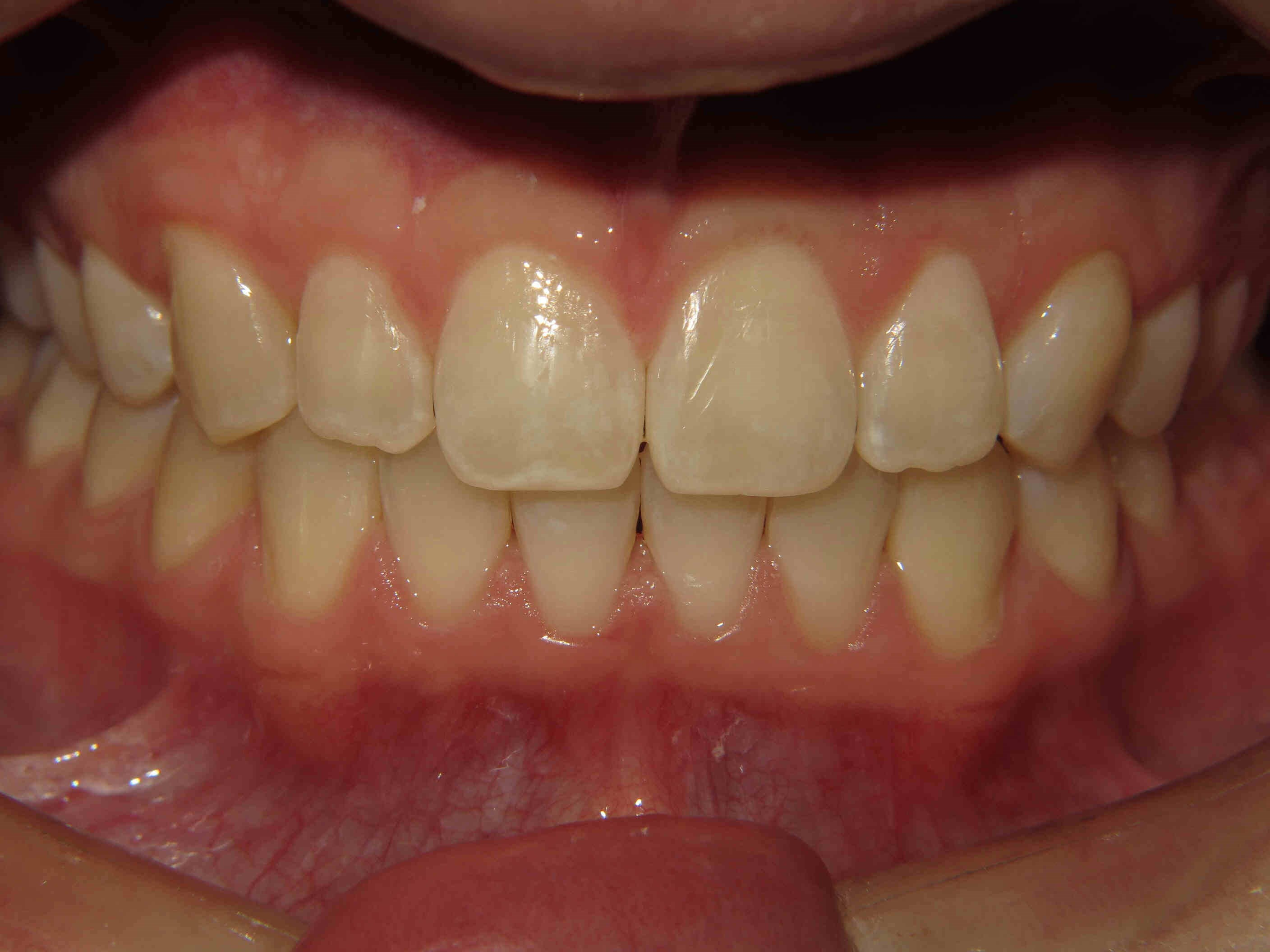 Clear Correct Aligners After