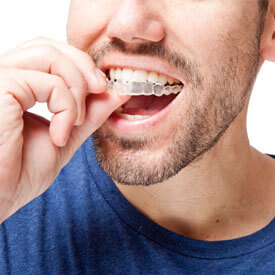 ClearCorrect™ Aligners Image